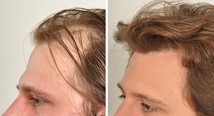 برای انجام کاشت مو باید چه ساله باشم؟