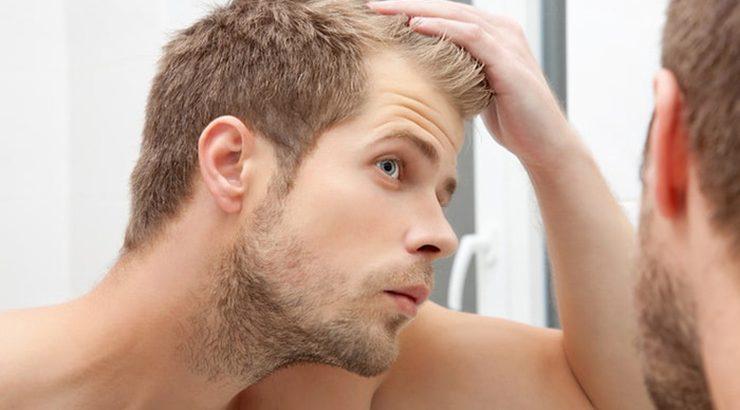 جلوگیری از ریزش موی سر مردان