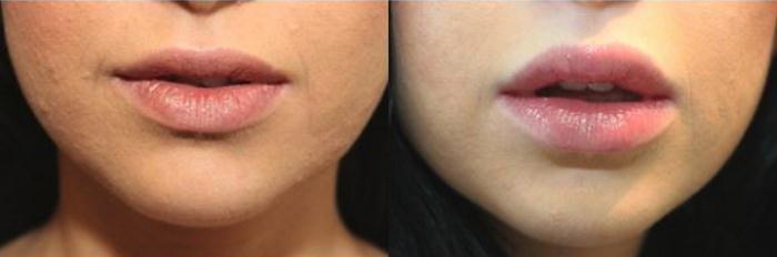 مراقبتهای بعد از تزریق ژل به لب